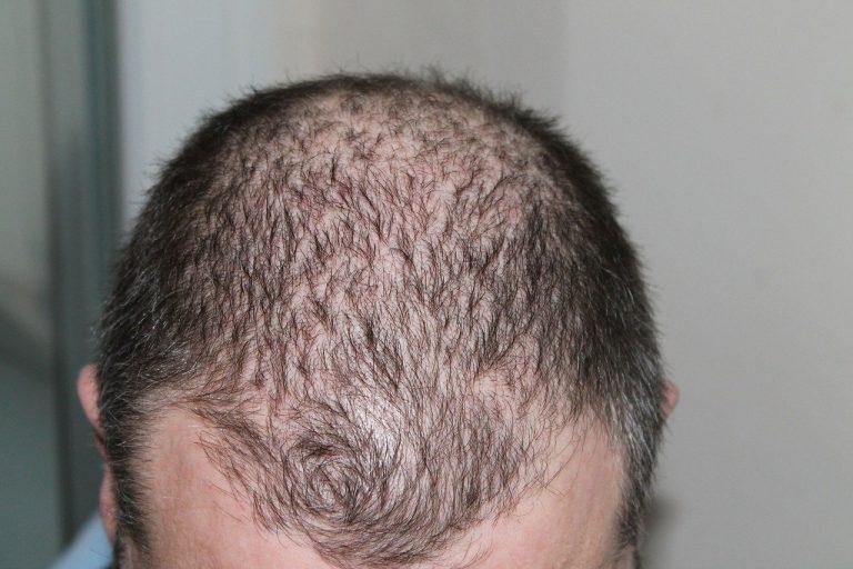 Hair Loss and Mental Health